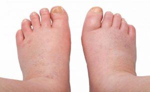 Wat zeggen opgezwollen voeten?