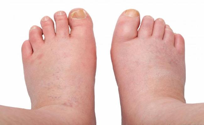 Opgezwollen voeten | Podotherapie Eemland
