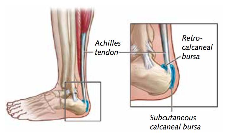 Achillespeesklachten - Achillodynie - Ontsteking of irritatie van de achillespees of de slijmbeurs